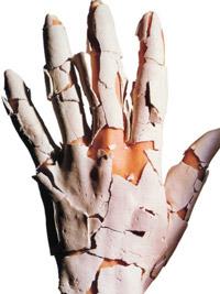 сухие неухоженные руки