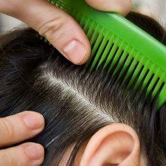 Методы лечения волос