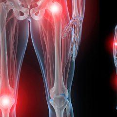 Боль в области коленного сустава при сгибании и разгибании. Основные причины и способы лечения