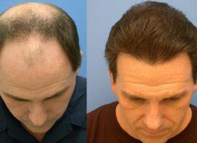 Когда нужно повторять лазерную операцию волос?