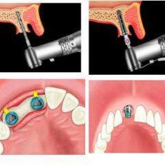 Как осуществляется имплантация зубов?